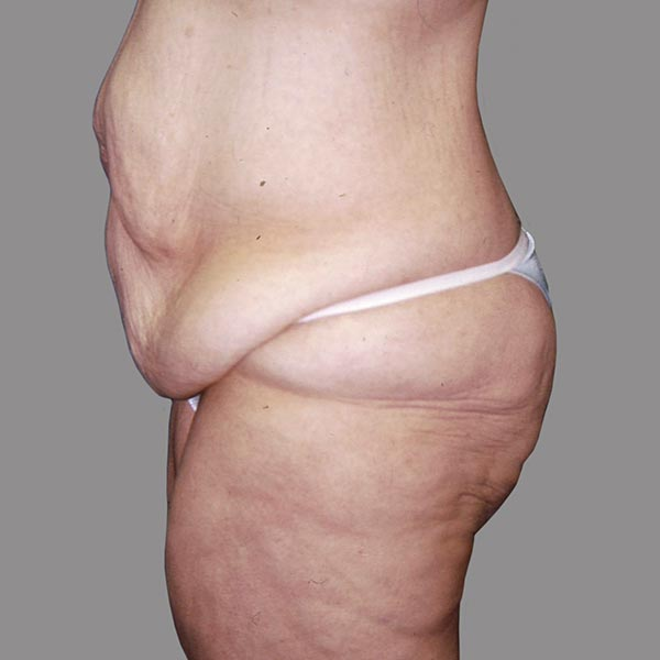 Abdominoplasty After Massive Weight Loss Pre-op 1 edit