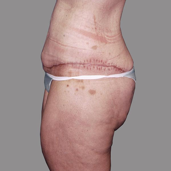 Abdominoplasty after Massive Weight Loss Post-op 1 edit