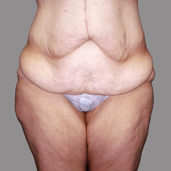 Abdominoplasty after Massive Weight Loss Pre-op 2 edit