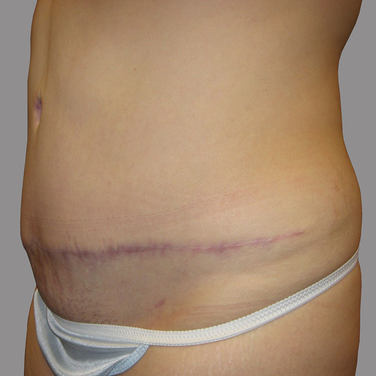 Abdominoplasty after Massive Weight Loss Post-op 2 edit